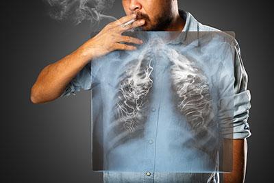 COPDという病気を知っていますか